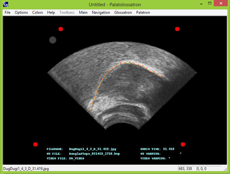 Figure 2. The Palatoglossotron user interface